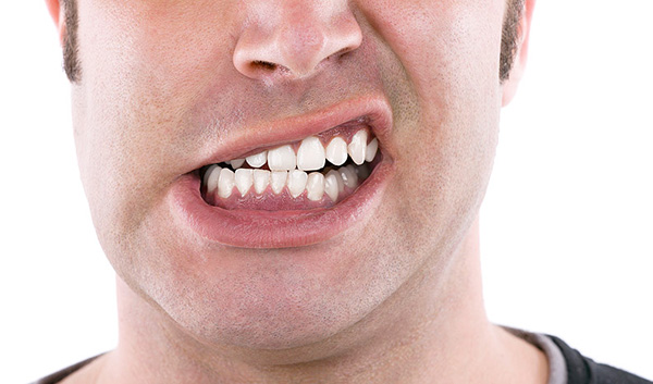 Nghiến răng có thể gây hậu quả nặng nề